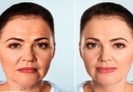 سيدة سعودية تصدم أطباء التجميل: وداعاً للبوتوكس، فقط قوموا بهذا مرة واحدة يومياً